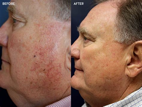 laser services treatment of red and brown lesions scars