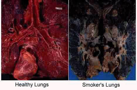 why you need to stop smoking, now! | fitnish.com