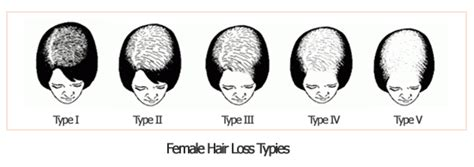 causes of female pattern hair loss women hair loss causes why women lose hair and regrowth