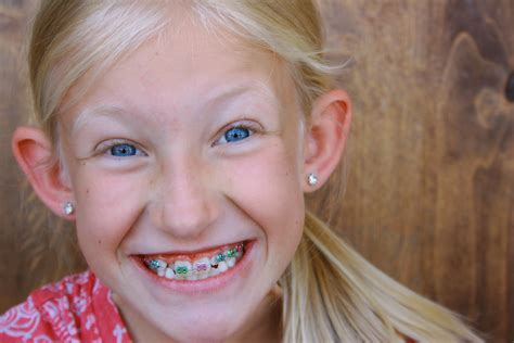 young teen girl face with braces the gallery for gt tween braces