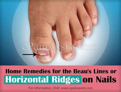 Treatment To In Minutes Second City Style Fashion by Best 25 Beau S Lines Ideas On Rage