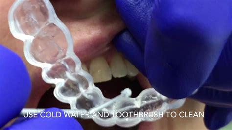 enlighten teeth whitening youtube