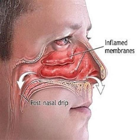 top remedies for sinus congestion you can make at