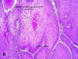 american urological association verrucous carcinoma