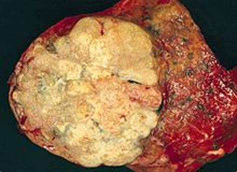 Cctv Di Lung ipertrofia muscolare the knownledge