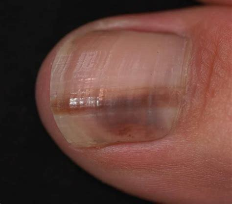nail bed melanoma subungual melanoma related keywords subungual melanoma