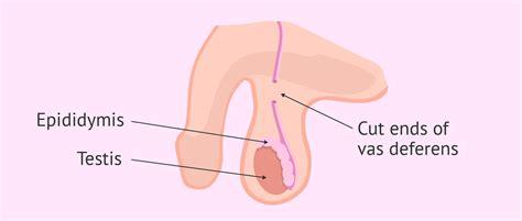 The Procedure diagram of the vasectomy procedure