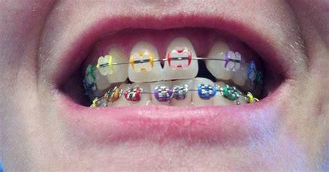 colored braces colored braces colors braces