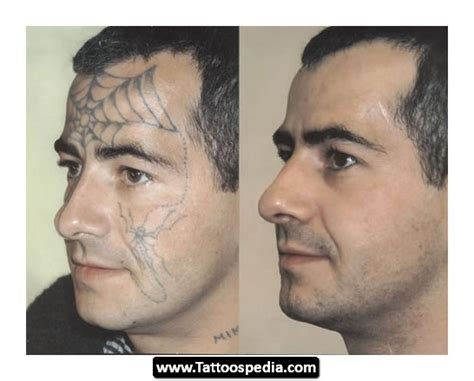face tattoo removal before and after before and after removal tattoospedia