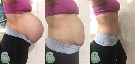 c section pilates pilates after c section 28 images how to do pilates