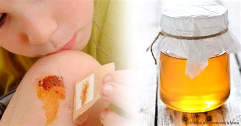 best treatment for open wounds honey naturally speeds up wound healing
