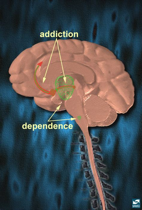 Grants For Detoxic For Heroin by 10 Addiction Vs Dependence National Institute On