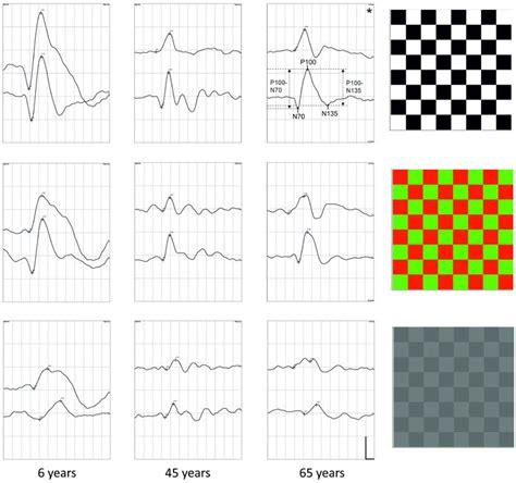 checkerboard pattern reversal stimulation vision free full text the development and aging of the