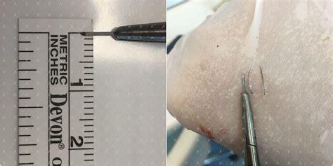 hair transplantation tools περιστατικό πύκνωσης αποτέλεσμα 8μήνου anastasakis