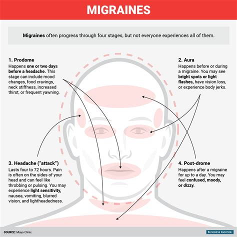 And Migraines Is It In Your by Do You A Headache Or A Migraine Here S How To Tell