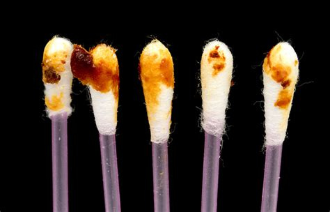 color of earwax the color and texture of your earwax reveals everything