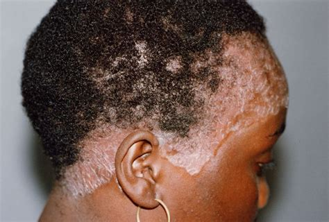 best hair for psoriasis 22 best images about what is scalp psoriasis on pinterest
