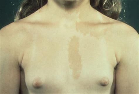 Female Genitalia Puberty