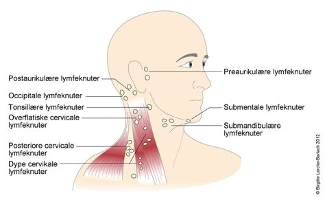 wo liegen die lymphknoten hovne lymfeknuter hos barn veiviser nhi no