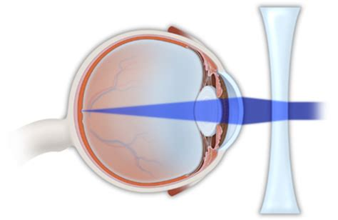 myopia definition ophthalmology history