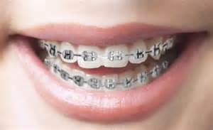 best color for braces customize your braces braces colors colored elastics