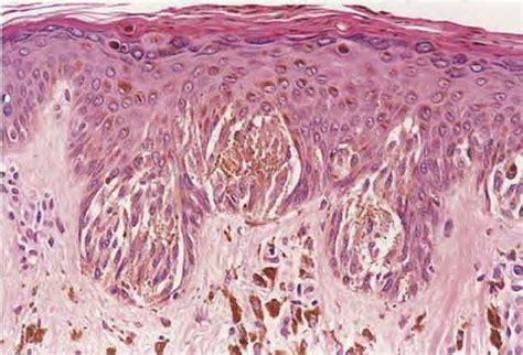 Pigmented Spindle Cell Nevus Of Reed Pathology Outlines by Pigmented Spindle Cell Melanocytic Tumor ورم الخلايا الميلانية المغزلية المصطبغ