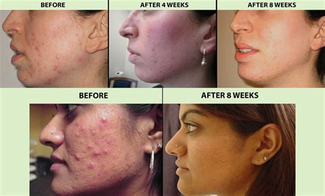 blue light acne treatment before and after