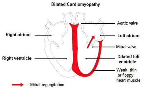 dcm dogs doberman pinscher dilated cardiomyopathy ufaw
