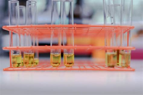 Can Lab Test Detect Detox by Lab Based Testing Process And Certifications