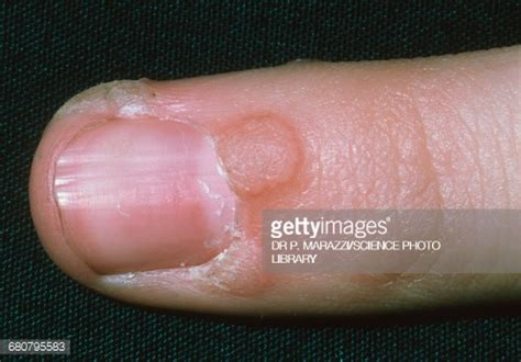 plantar wart stock photos and pictures getty images