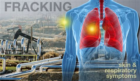 more health symptoms reported near 'fracking' natural gas