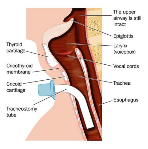 laryngectomy diagram anatomy