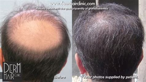 hair transplants 1000 graft coverage hair transplants 1000 graft coverage hair transplants