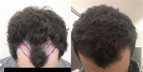 hair transplant month by month pictures a real rahal patient s quot life transforming quot hair transplant