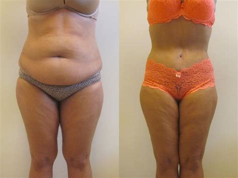Plastic Surgery After C Section by 92 Best Tummy Tuck Images On Tummy Tucks