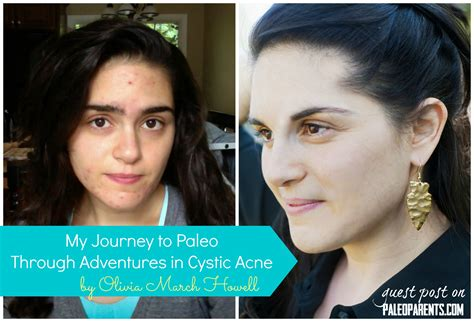 Cystic Acne Detox Diet by Guest Post My Journey To Paleo Through Adventures In