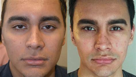 surgically change eye color almond eye surgery taban md oculoplastic cosmetic eyelid