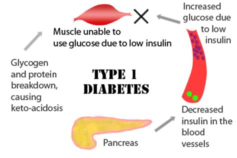 textbook : type 1 diabetes complications | open access books