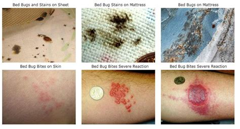Bed Bug Bites Symptoms Treatments And Prevention