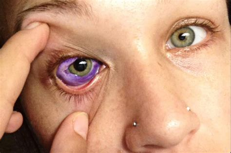 eyeball tattoo infection doctors warn eyeball tattoos could lead to blindness