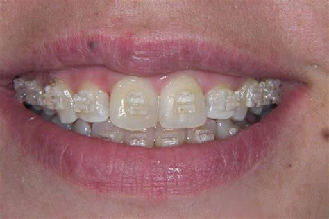 comfort dental braces cost how much do braces cost in the uk the dental guide