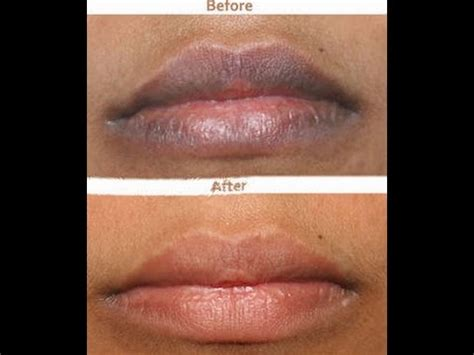tattoo lips lighter how to naturally lighten dark lips fast results youtube