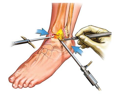 ankle arthroscopy claremont hospital