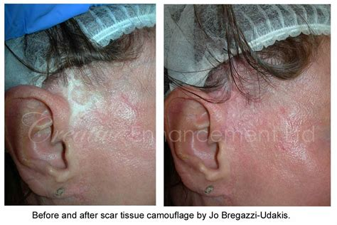 medical tattooing for scars scar camouflage for facelift scars jo bregazzi