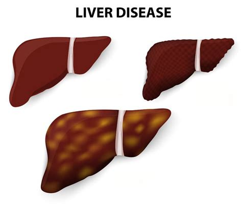 Ala Detox Symptoms by 17 Best Images About Liver Alternative Remedies On