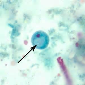 pics for gt endolimax nana trophozoite