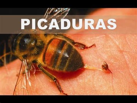 minicuentos de abejas y 8448838475 como trata las picaduras de abejas o avispas en casa con remedios naturales y efectivos youtube