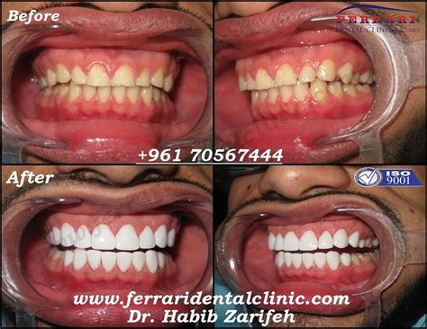 dental veneers hollywood smile cost in lebanon by elite