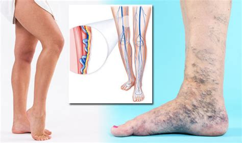 what color are veins varicose veins what is the treatment for condition that