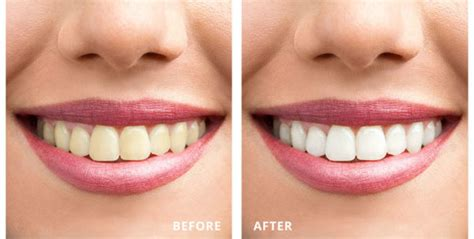 laser teeth whitening   pros  cons side